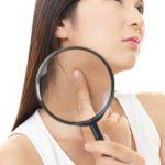 首のポツポツの原因と取り方~首イボを取る市販薬や治療法とは?