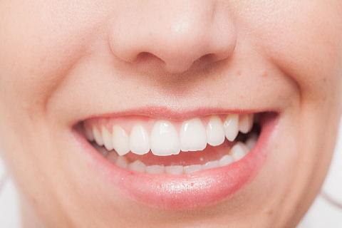 笑うとほうれい線がくっきりと目立つ30代やせ形女性