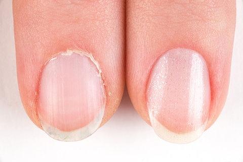 乾燥した爪