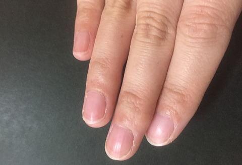 乾燥して脆くなった爪
