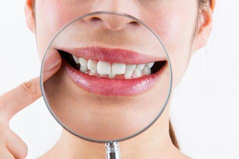 歯医者のPMTCで想像以上に歯が白くなりました!