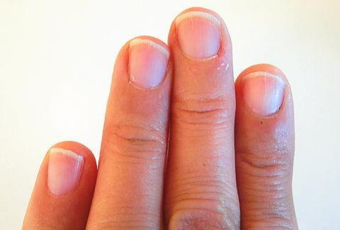 汚い管理人の左の爪