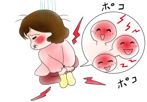 イボ痔に悩む女性のイラスト