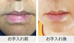 口周りのヒゲ対策クリーム・ノイスの体験談1