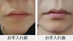 口周りのヒゲ対策クリーム・ノイスの体験談2