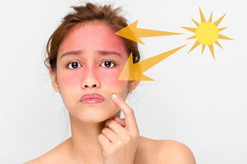 ほんのちょっとの油断でこんなに日焼けするとは…と後悔しないためにもうっかり日焼けには要注意です!